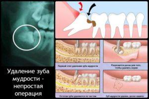 Удалили зуб болит десна и соседний зуб. После удаления зуба мудрости болят соседние зубы
