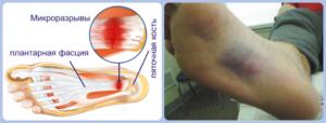 Воспаление подошвенного апоневроза лечение. Подошвенный апонероз – симптомы и лечение заболевания народными средствами. Лечебная терапия подошвенного фасциита