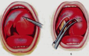 Болит миндалина с одной стороны: опухла гланда и воспалилось горло