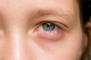 Отеки под глазами с одной стороны: причины, лечение. Опух глаз — что делать? Лечимся сами