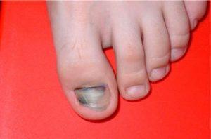 Почернел пришитый палец. Почернел палец на ноге: причины и методы лечения. Ноготь изменил цвет, но нет боли, отечности, посинения