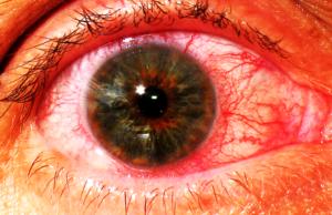Воспаление радужки (ирит). Ирит глаза: симптомы и лечение