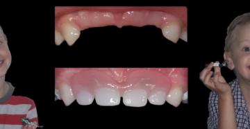 Делают ли протезирование молочных зубов? Протезирование зубов у детей