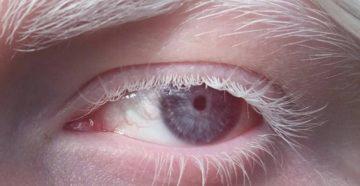 Цвет глаз разновидность. Цвет глаз: Черный. Красные глаза у детей альбиносов