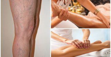 Какой антицеллюлитный массаж делать при варикозе. Какой можно делать антицеллюлитный массаж при варикозном расширении вен (варикозе) на ногах