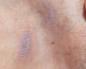 Натерла в интимном месте что делать зуд. Причины зуда интимной зоны - половых органов, влагалища, половых губ. Рецепт ванны с тимьяном