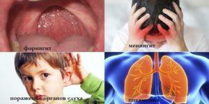 Осложнение гайморита менингит. Последствия гайморита: осложнения у взрослых и детей