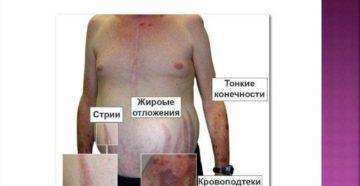 Гиперкортицизм – причины, симптомы, лечение. Гиперкортицизм – причины возникновения и методы лечения