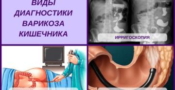 Варикоз кишечника: симптомы и диагностика. Симптомы варикоза прямой кишки