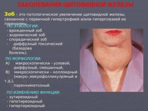 Гипертрофия щитовидной железы симптомы. Насколько опасна гипертрофия щитовидной железы? Диагностика и лечение