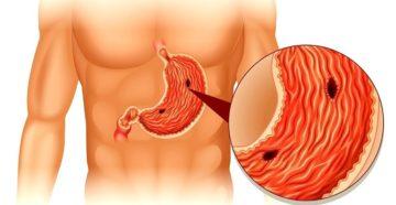 Как понять, что у тебя язва желудка? Как распознать симптомы язвы желудка