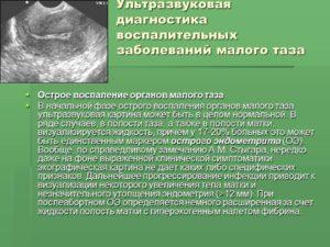 Воспаление малого таза у женщин. Воспаление органов малого таза: причины возникновения проблемы