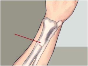 Сколько срастается трещина в кости на пальце. Причины трещин в костях, как определить и как лечить
