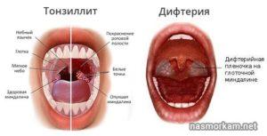 Волдыри на стенке горла без температуры. В горле волдыри: причины и лечение
