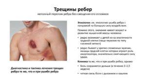 Признаки трещины в ребре на спине. Дополнительная симптоматика травм. Трещина в ребре: разновидности, симптомы, причины развития, способы лечения, профилактика