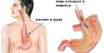 Почему горит пищевод. Чувство жжения в горле – что это может быть, что делать