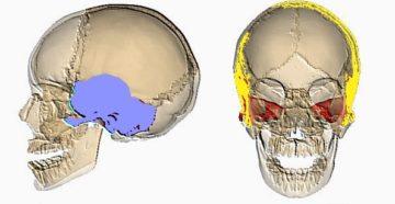 Черепно мозговая травма перелом височной кости. Как лечить перелом височной кости. Разновидности перелома височной кости