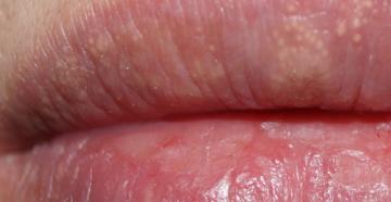 Болезнь фордайса на губах лечение. Что такое гранулы Фордайса