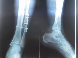 Сколько срастается большеберцовая кость? Сколько и как срастаются кости при переломе