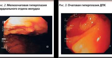 Очаговая гиперплазия слизистой желудка лечение. Что такое очаговая гиперплазия слизистой желудка