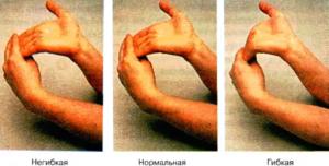 Восстанавливаем гибкость пальцев. Не могу сжать в кулак в руке слабость