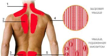 Лечение заболевания миозит. Миозит – какой врач лечит Кто лечит миозит
