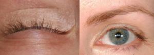 Алопеция ресниц: причины и лечение. Выпадают волосы и ресницы, в чем причины
