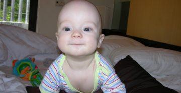 Плохо растут волосы у грудничка 8 месяцев. Почему у ребёнка не растут волосы
