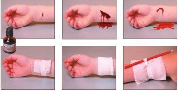 Больно ли умирать от вскрытия вен. Алгоритм оказания первой помощи при порезе вены на руке. Когда нужен врач