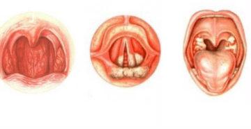 Чем лечить воспаление голосовых связок у собак. Ларингит у собак: как уберечься от болезни, и можно ли вылечить народными средствами. Лечение ринита у собаки