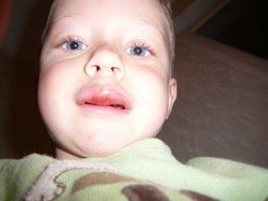 Ребенок полтора года разбил губу что делать. Что делать, если ребенок разбил губу изнутри и она опухла