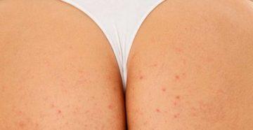 Красные пятна на попе у взрослого чешется. Как быстро избавиться от сыпи на ягодицах? Почему эта проблема часто возникает у женщин