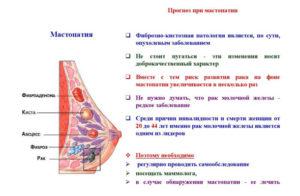 При нажатии на молочную железу чувствуется боль. Боль в молочной железе - причины появления, возможные заболевания, методы их диагностики и лечения