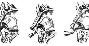 Что такое резекция носовой перегородки. Подслизистая резекция носовой перегородки. Резекция сигмовидной кишки - причины, показания, прогноз и последствия