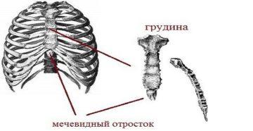 Боль при нажатии на мечевидный отросток грудины. Мечевидный отросток грудины увеличился