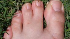 Сросшиеся указательный и средний пальцы на ногах. Синдактилия пальцев. Когда происходит операция