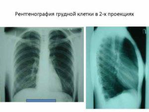 Флюорография грудной клетки в 2 х проекциях. Для чего делают рентген легких. Показывает ли рентген рак легких