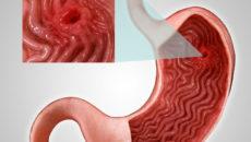 На слизистой высыпания в виде манной крупы. Лимфангиоэктазия слизистой двенадцатиперстной кишки (ДПК). Что это за болезнь и в чем ее особенность
