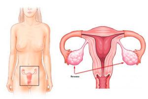 Левый яичник за маткой причины что делать. Женская матка: что это такое, как выглядит и где находится? Строение и физиологические изменения матки