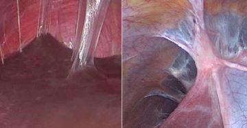Как появляются спайки после операции. Могут ли образоваться спайки после лапароскопии