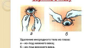 Соринка под веком как вытащить. Если в глаз попала соринка — что делать и как оказать первую помощь? Что делать с вонзившейся в глаз соринкой
