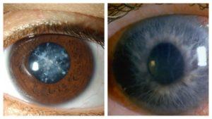 Удаление катаракты при глаукоме. Что такое катаракта и глаукома