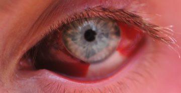Что означает кровь на глазе. Что делать, если глаз залило кровью? Причины и методы лечения