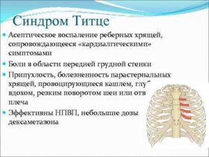 Перихондрит реберных хрящей: причины, симптомы, лечение. Как проявляется и лечится синдром титце