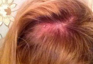 Фурункул под волосами на голове: лечение. Фурункул на голове в волосах: лечение