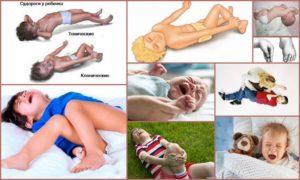Что делать при судорогах у детей: причины и алгоритм оказания первой помощи. Почему у ребенка могут возникнуть судороги и как их вылечить