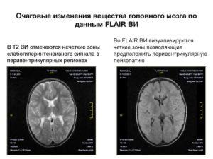 Дистрофические очаги в белом веществе головного мозга. Очаговые изменения вещества мозга дистрофического характера