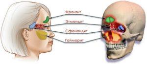 Сфеноидит последствия. Что такое сфеноидит? Поражение черепно-мозговых нервов