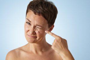 Как избавится от тика лица. Лечение нервного тика на лице. Что делать при нервном тике: народные средства