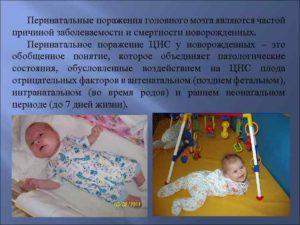 Последствия гип цнс. Причины и последствия поражения цнс новорожденных